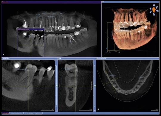 3D дентальная компьютерная томография