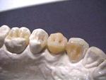Микропротезирование. Адгезивный мост с опорой на соседние зубы